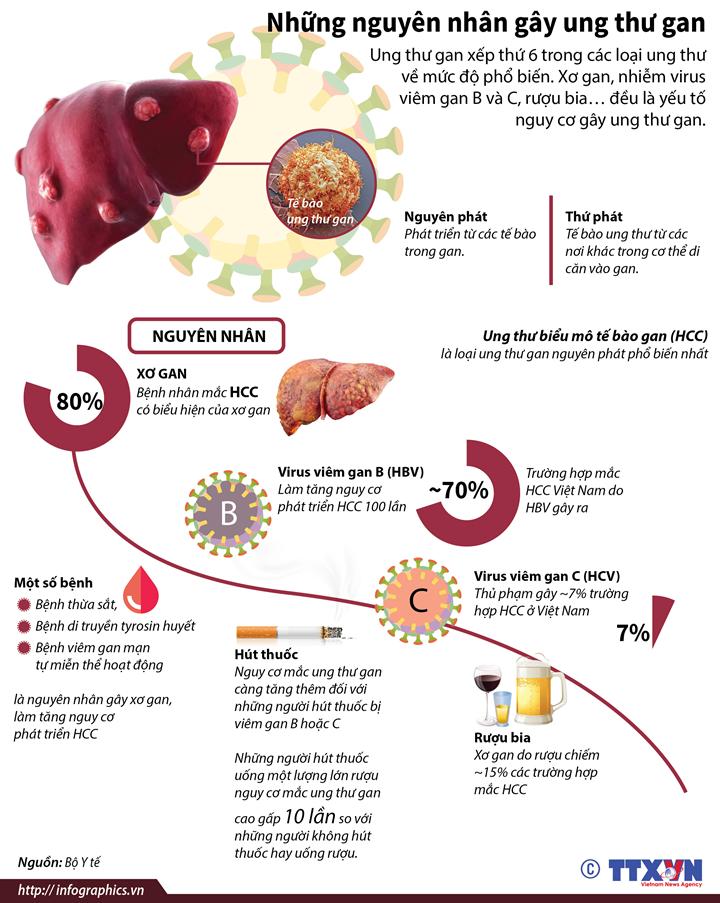 Những nguyên nhân gây ung thư gan
