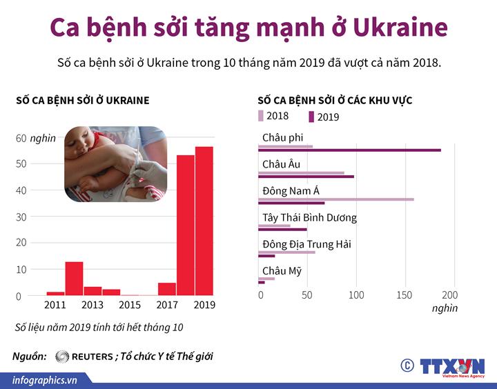 Ca bệnh sởi tăng mạnh ở Ukraine
