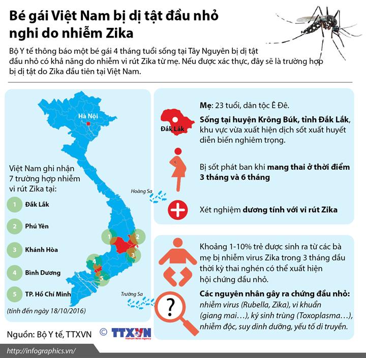 Bé gái Việt Nam bị dị tật đầu nhỏ nghi do nhiễm Zika