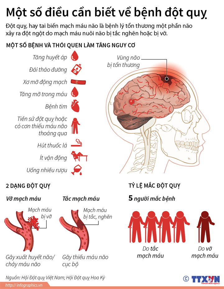 Một số điều cần biết về bệnh đột quỵ
